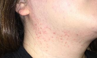 before 湿疹症例